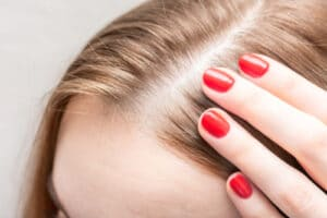 how to moisturize scalp without oil